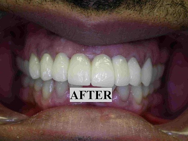 cosmetic dentistry research paper Scientific journal of research in dentistry online publishing journal which aims to publish scholarly and quality papers in the cosmetic dentistry.